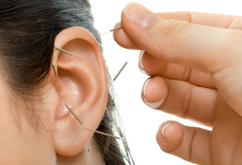 Ear Acupuncture Charleston SC